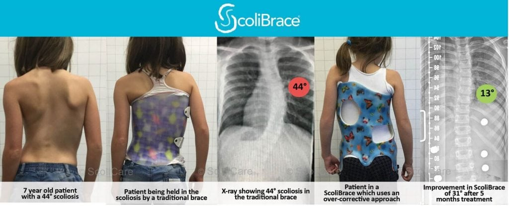 scolibrace results